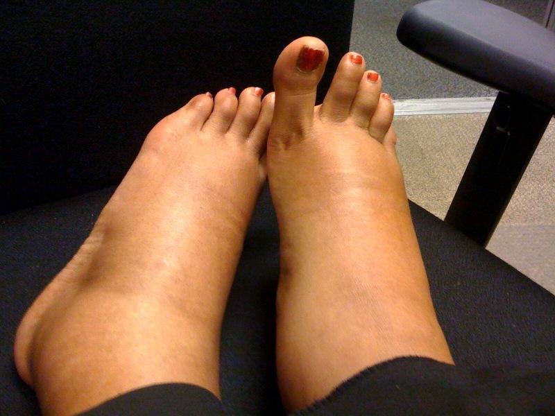 picioarele și picioarele inferioare umflate